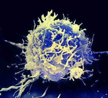 lymphocyte.jpg